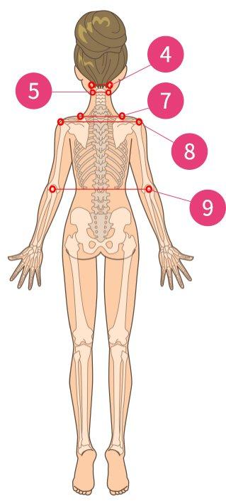 腕の神経痛