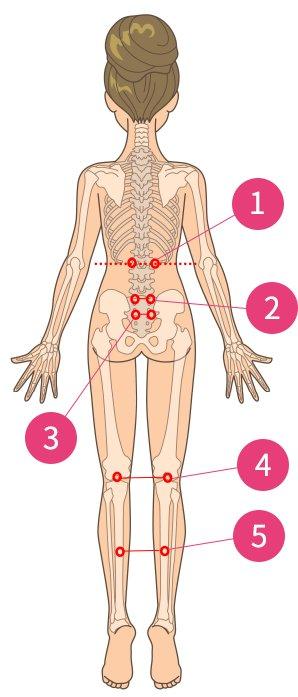 ぎっくり腰(急性腰痛)